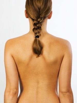 O que é Osteoporose? Como prevenir?