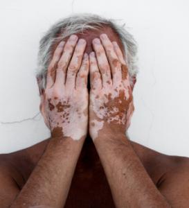pessoa com vitiligo