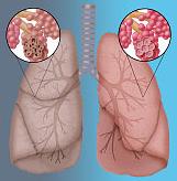 cigarro causa enfisema