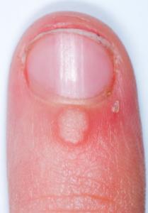 Thuya para tratamento de verrugas