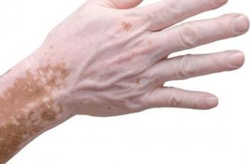 Afinal, Vitiligo é contagioso?