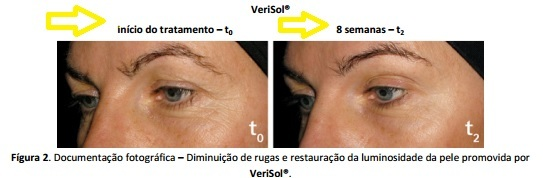Verisol-resultados