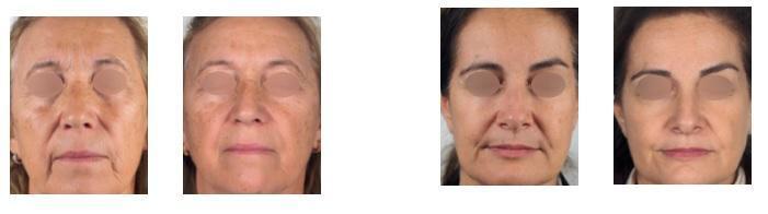 resultados-pele